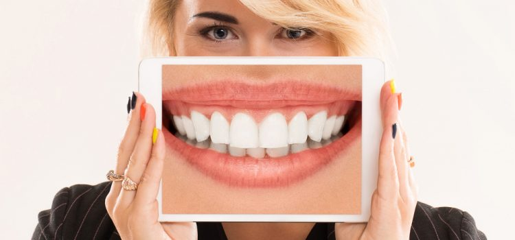 Blanchiment dentaire : comment ça marche et combien ça coûte ?